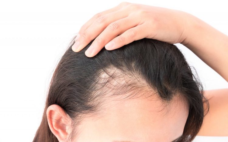 Tamunu Oil for Hair Loss
